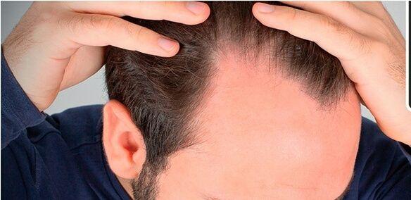 Objetivo: Recuperar cabello